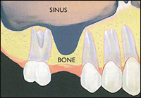 sinus_lift_photo_1