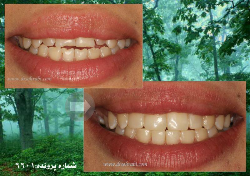 ترمیم دندان های قدامی با مواد همرنگ