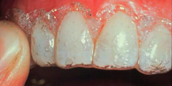 سفید کردن دندان به روش Office bleaching