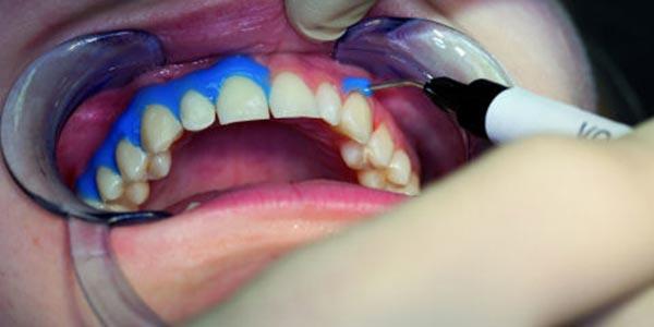سفید کردن دندان به روش بلیچینگ