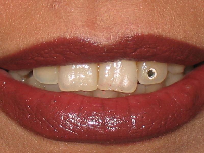 نگین دندان ۱۰