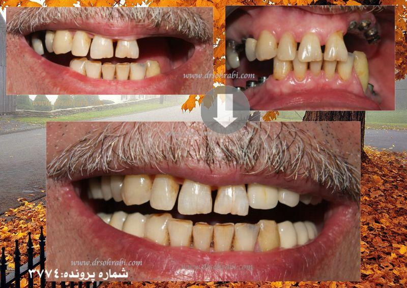 ایمپلنت و کاشت دندان