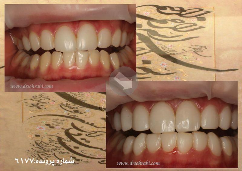 تغییر لامینیت دندان به کامپوزیت های میکرو استاتیک