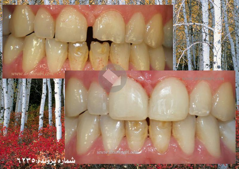 بستن فاصله دندان ها با کامپوزیت