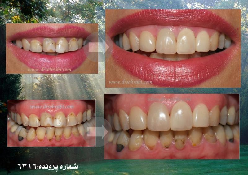 بازسازی کامل دندان با کامپوزیت