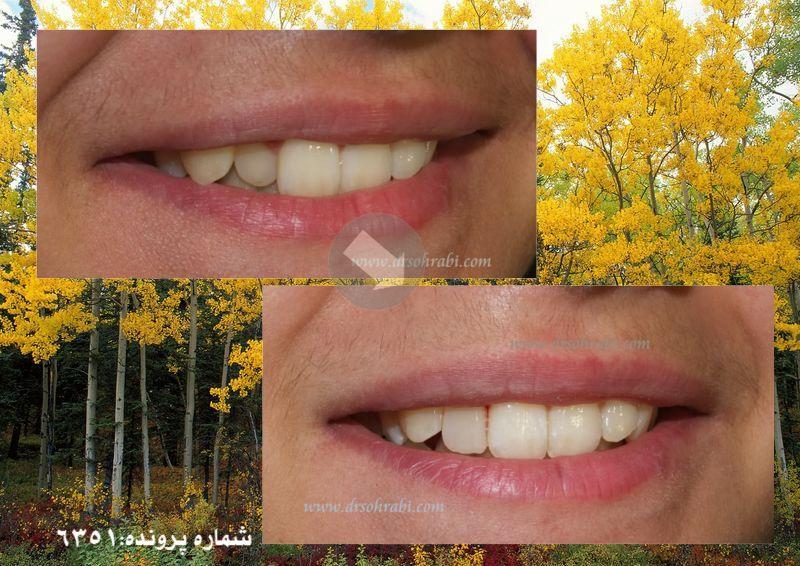 مرتب نمودن دندان ها بدون ارتودنسی