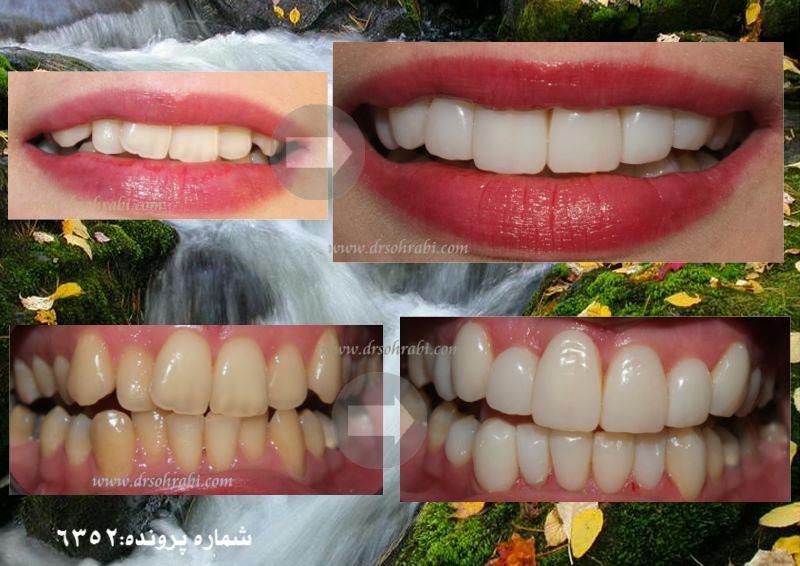 اصلاح بی نظمی دندانی بدون ارتودنسی