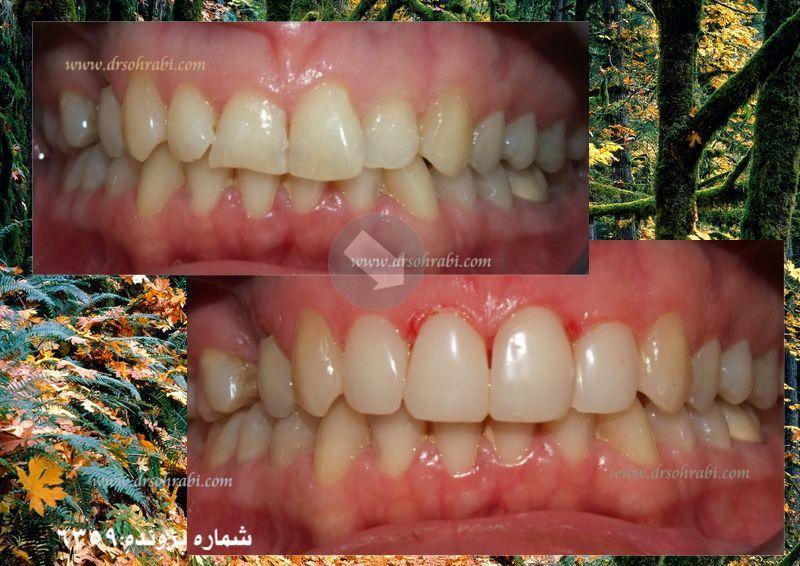 اصلاح شکل دندانی بدون تراش