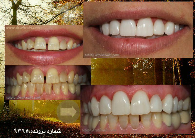 بستن فاصله بین دندان ها با کامپوزیت ها