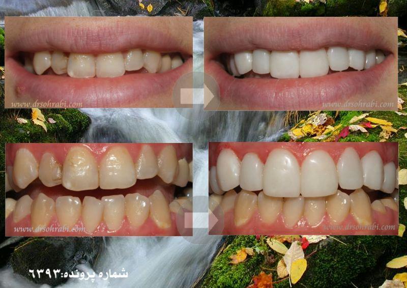 لمینیت دندان و لبخندی زیبا