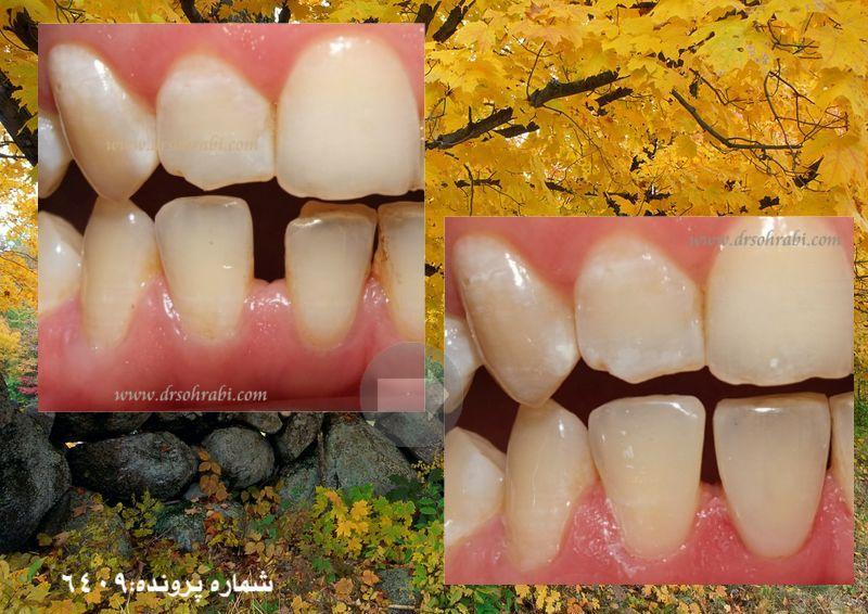 بستن فاصله های دندانی