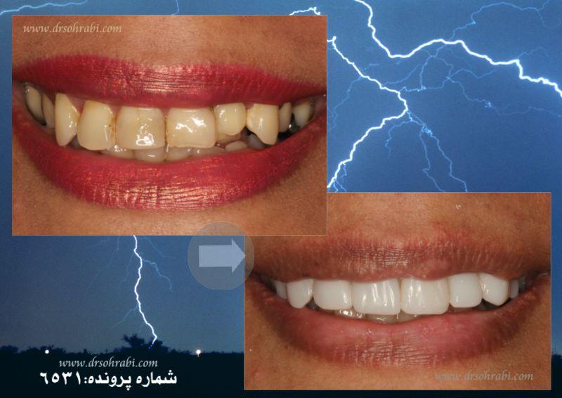 اصلاح بد رنگی و بد شکلی دندان ها با لامینیت کامپوزیت
