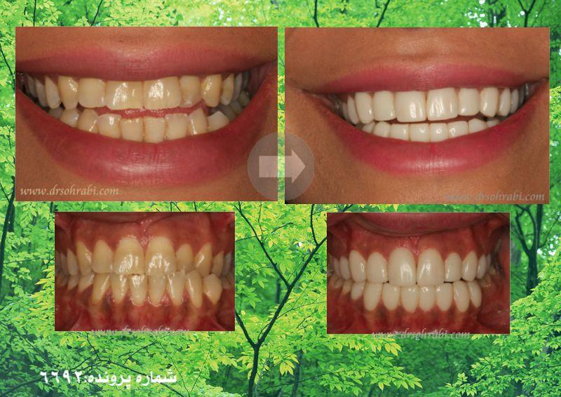 لامینیت دندان دو فک