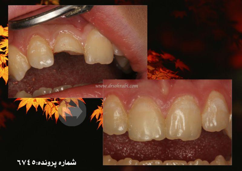 چسباندن قطعه شکسته دندان