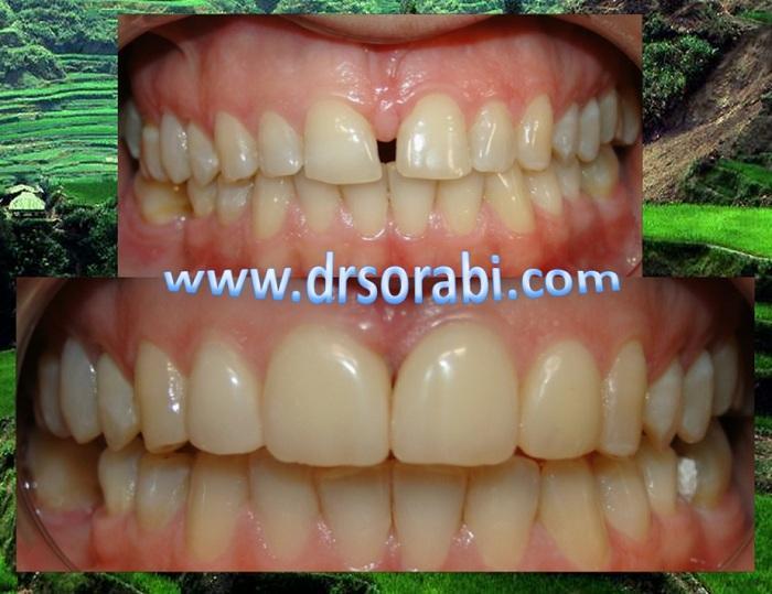 فاصله دندانی
