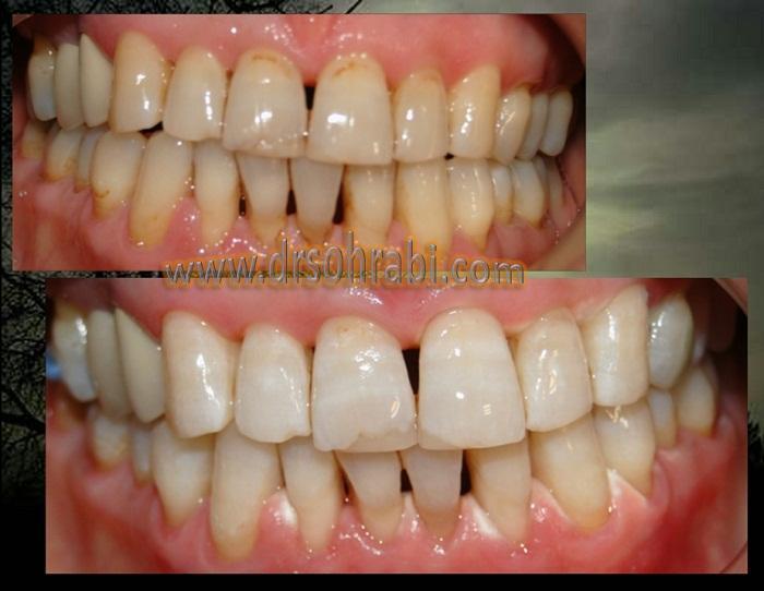 بلیچینگ دندانی