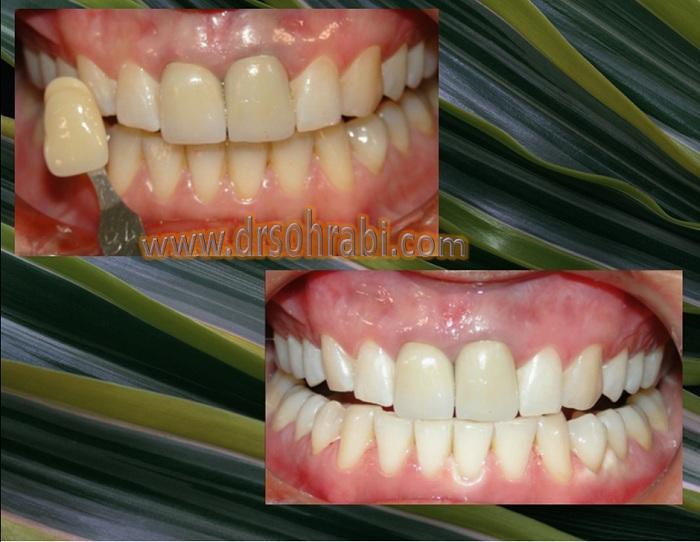 بلیچینگ دندان ها