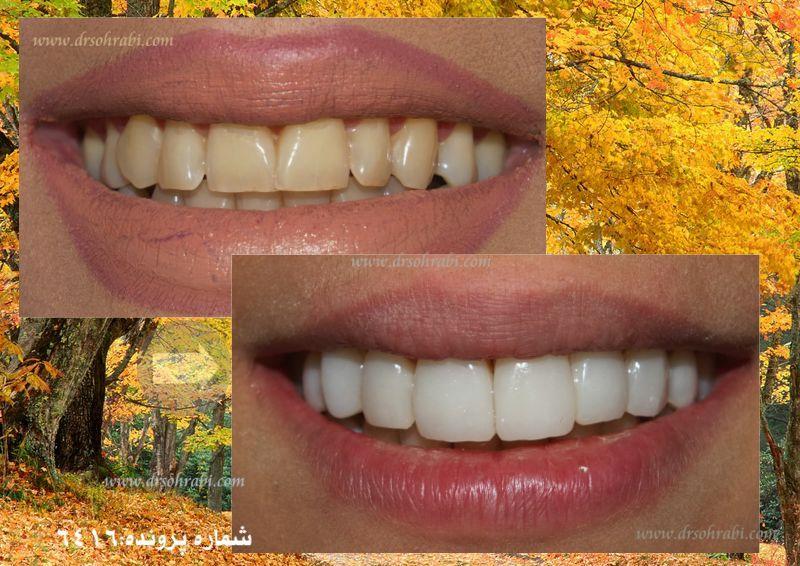 لمینیت دندان یا ونیر کامپوزیت