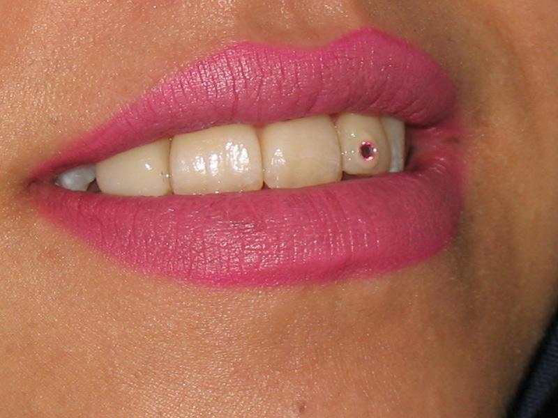 نگین دندان 5000