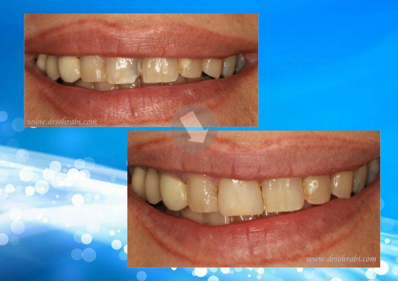 پوسیدگی دندان قدامی