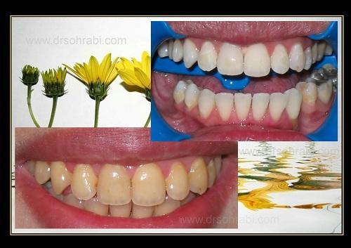 بلیچینگ رنگ دندان