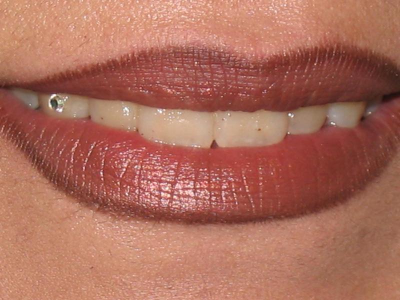نگین دندان 11