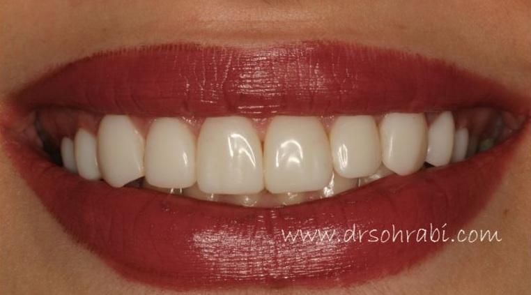 طراحی خط لبخند 6517
