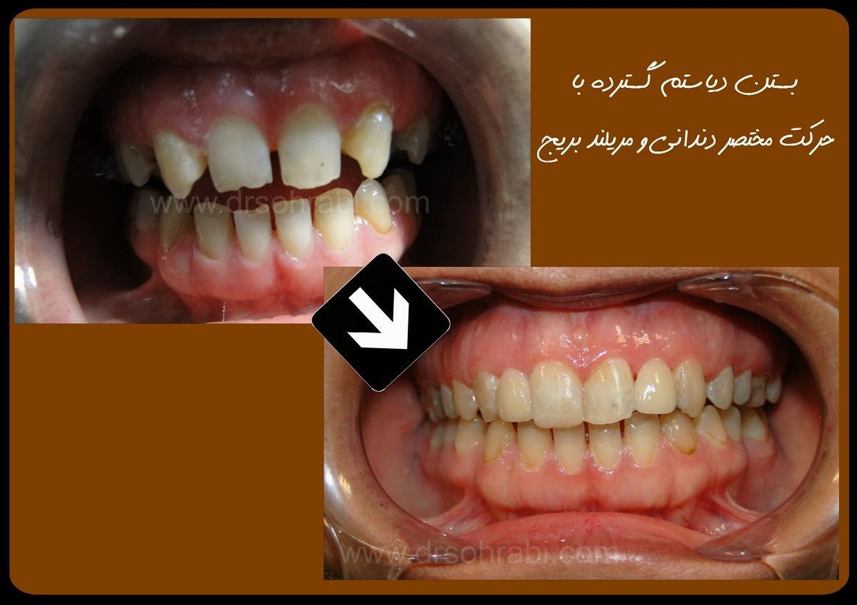 دیاستم دندانی