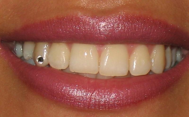 نگین دندان ۱۳