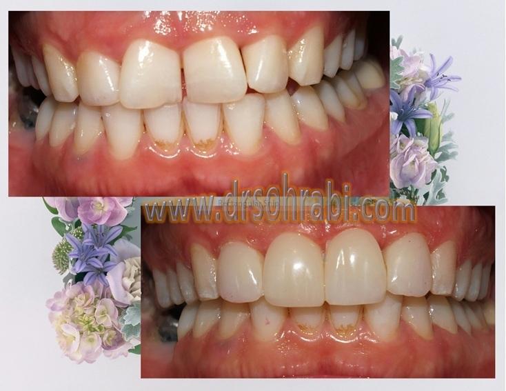 اصلاح بهم ریختگی دندانی بدون ارتودنسی