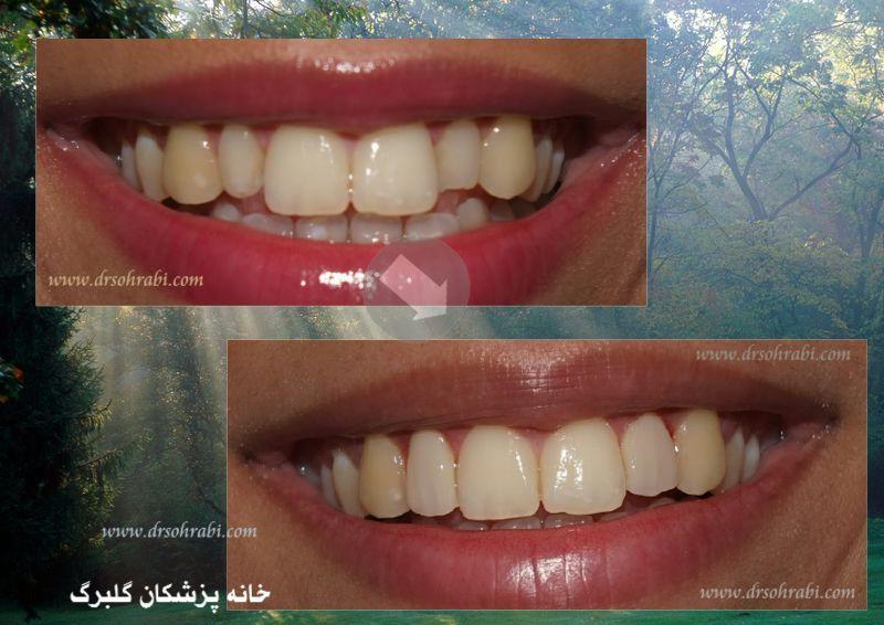 درمان نا مرتبی و شلوغی دندان ها