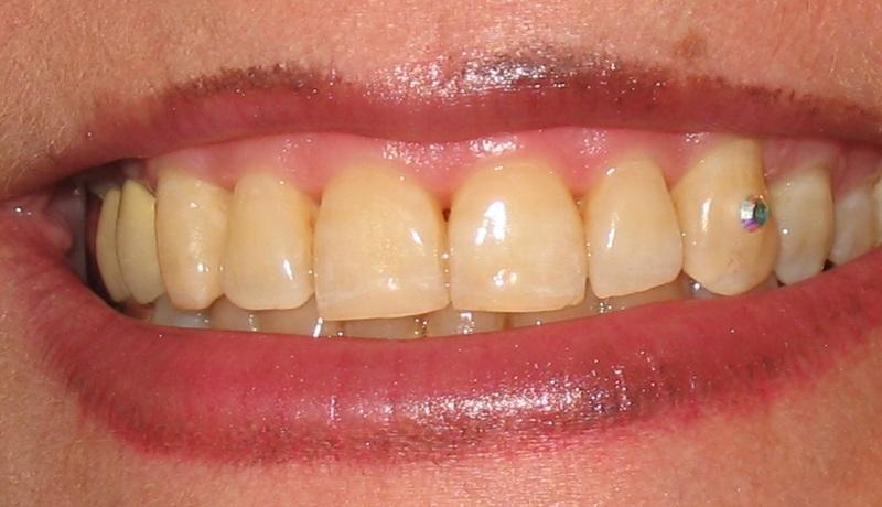 نگین دندان 4
