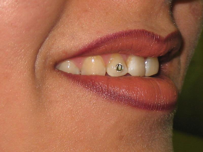نگین دندان 6000
