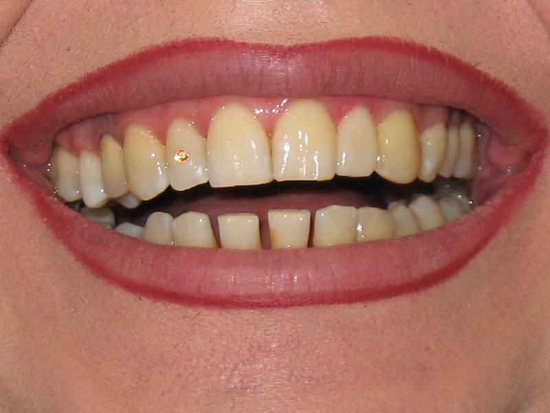 نگین دندان 2000