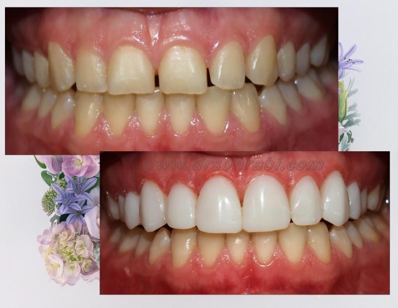 ونیر کامپوزیت و فاصله دندانی