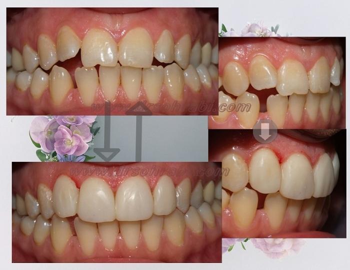 ردیف کردن دندان ها بدون ارتودنسی