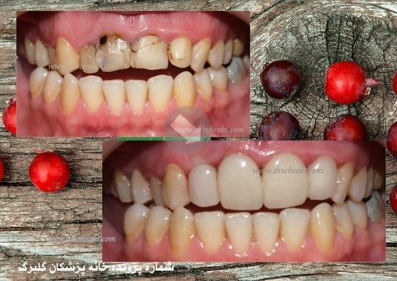 ونیر کامپوزیت چهار واحدی دندان قدامی