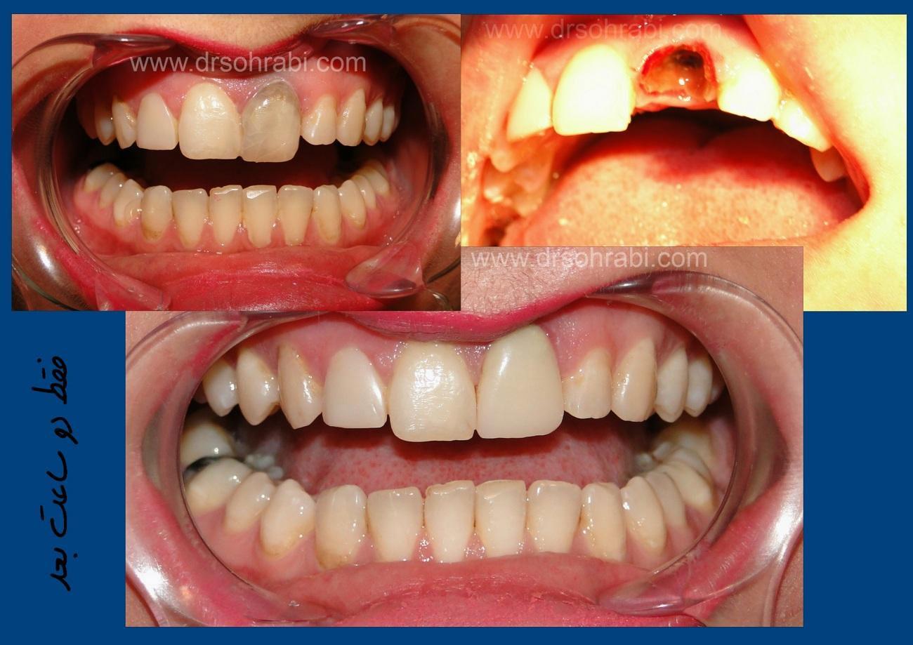 ترمیم دندان قدامی با ونیر کامپوزیت