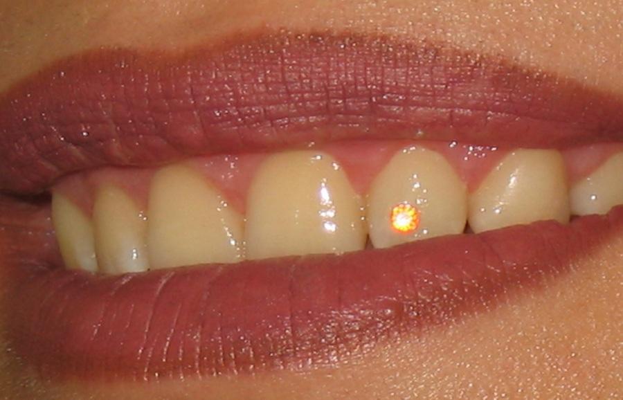 نگین دندان ۱