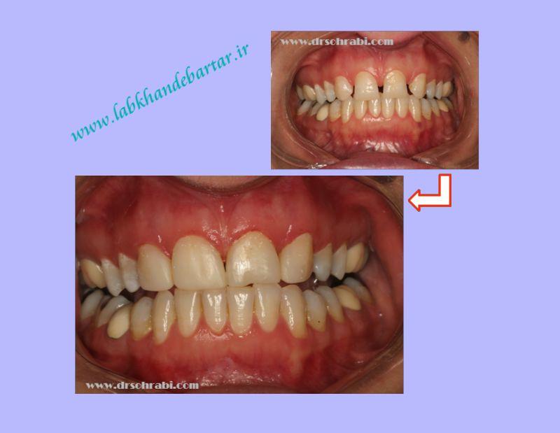 دیاستم یا بستن فاصله ی دندانی