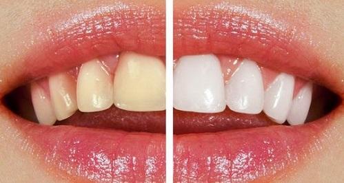 بليچينگ یا سفید کردن دندان