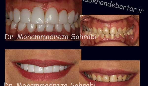 اصلاح خط لبخند دکتر سهرابی