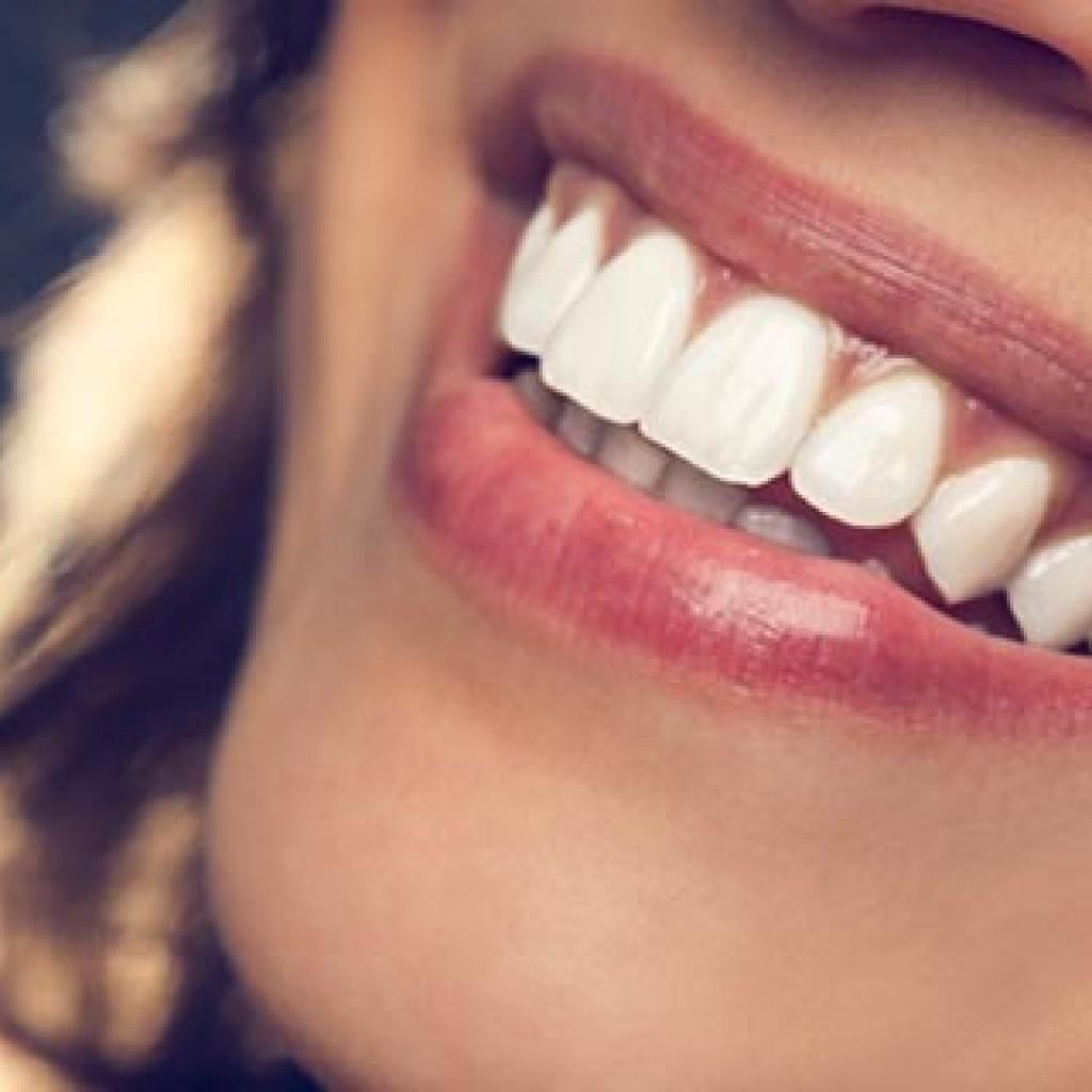 اصلاح خط لبخند