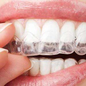 سفید کردن دندان با بلیچینگ خانگی