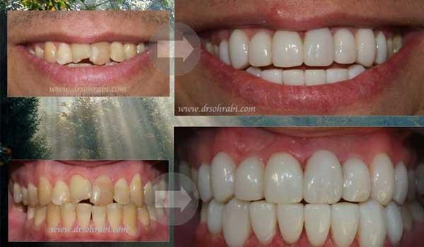 کامپوزیت دندان ترمیمی