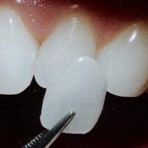 سفید کردن دندان با لمینیت کامپوزیت