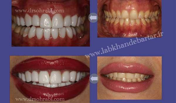 سفید کردن دندان با کامپوزیت