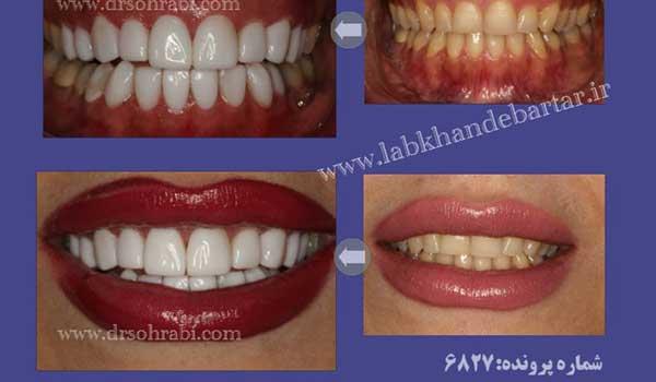 کامپوزیت در دندانپزشک زیبایی