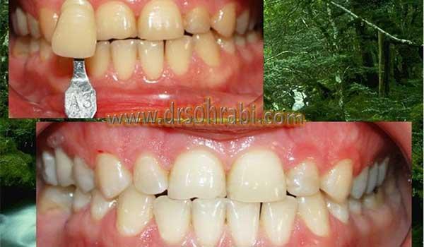 سفید کردن دندان های قدامی