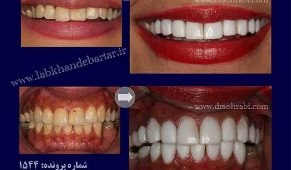 سفید کردن دندان با لمینیت